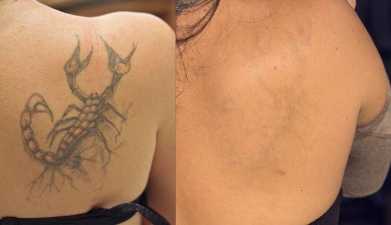 Лазерное удаление татуировок киев цена лазерное лечение акне красноярск